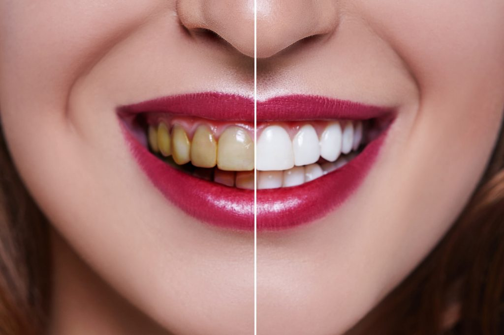 Where can I find a North Seattle Dentist?