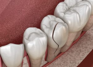 Where is the Best dentist 98115?