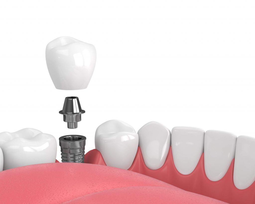 dental-implants-oral-surgery-98115