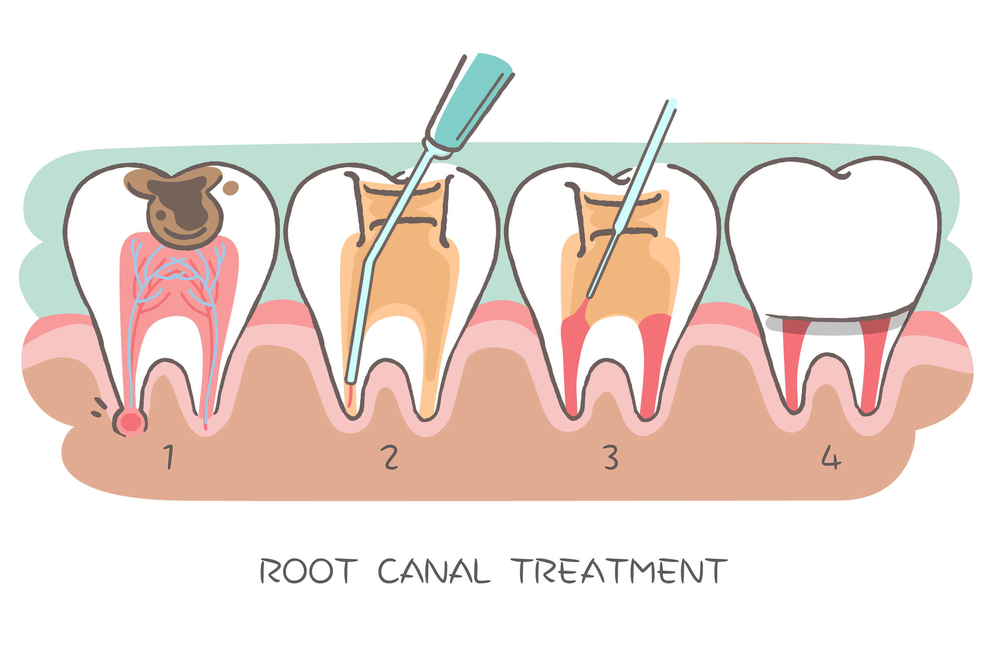 Where can I get a Root canal 98115?