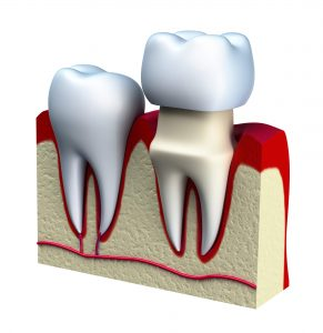 Where can I get dental crowns in 98115?