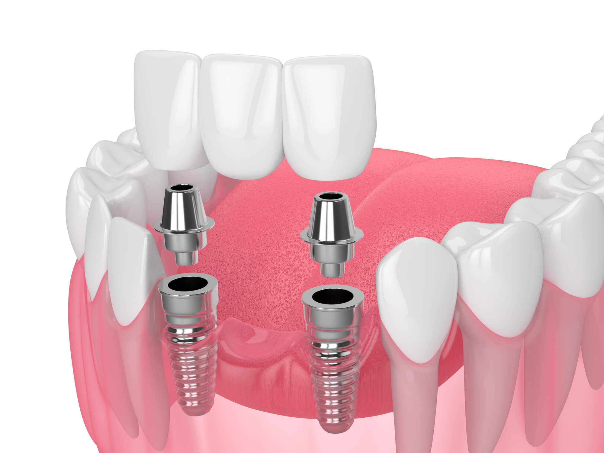 What are Dental bridges 98115?