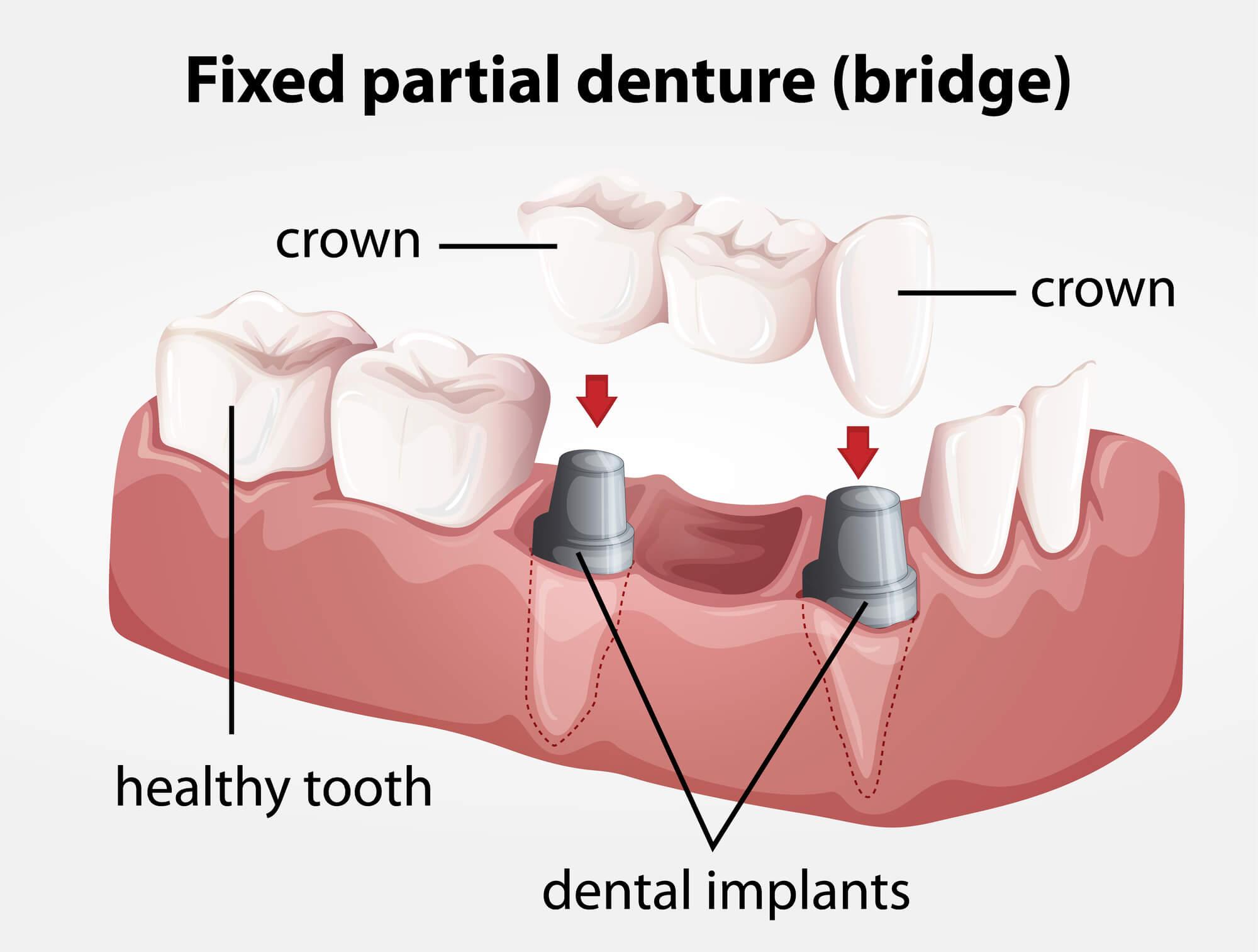 diagram Porcelain Dental bridges 98115