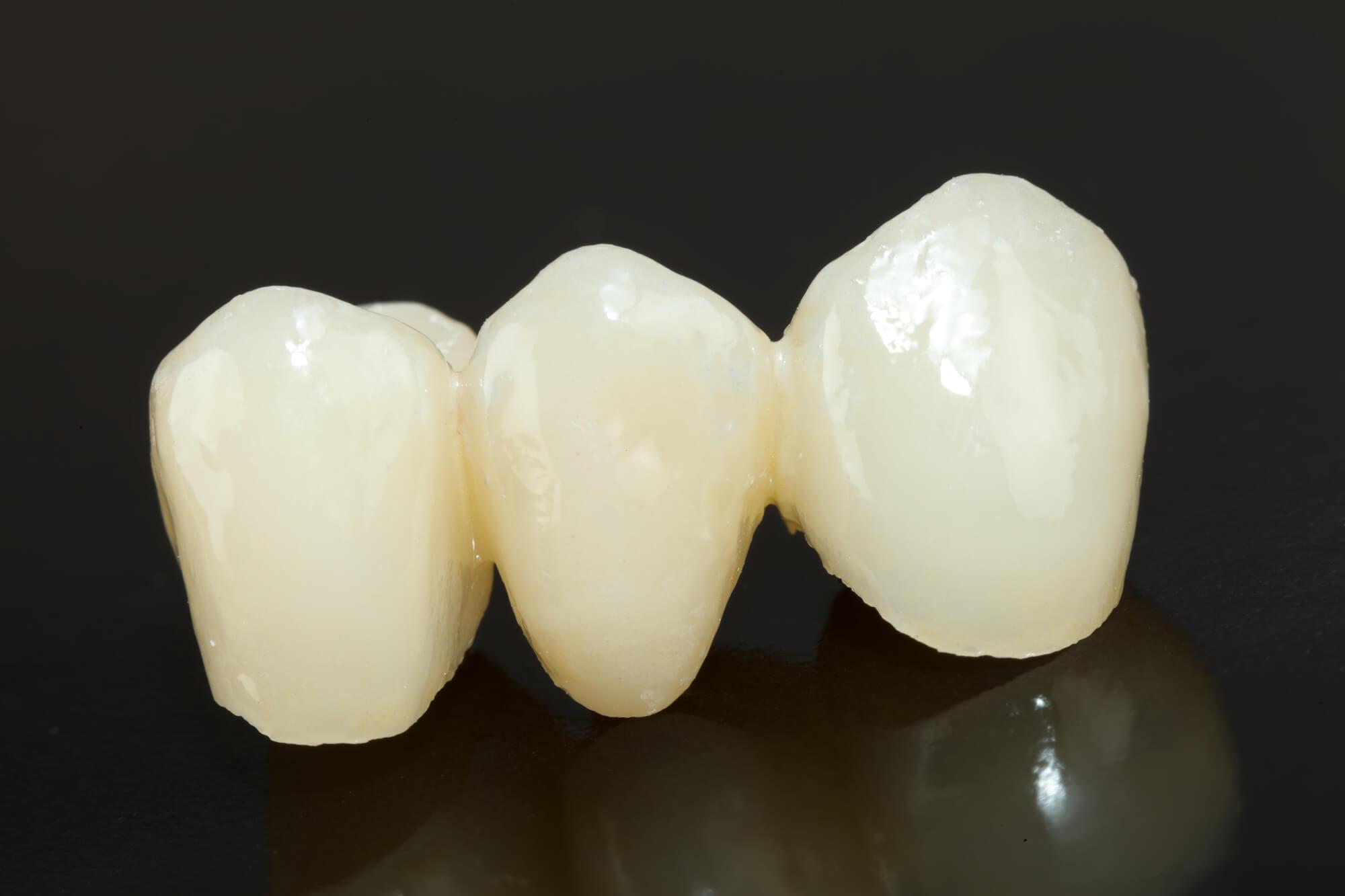 Porcelain Dental bridges 98115