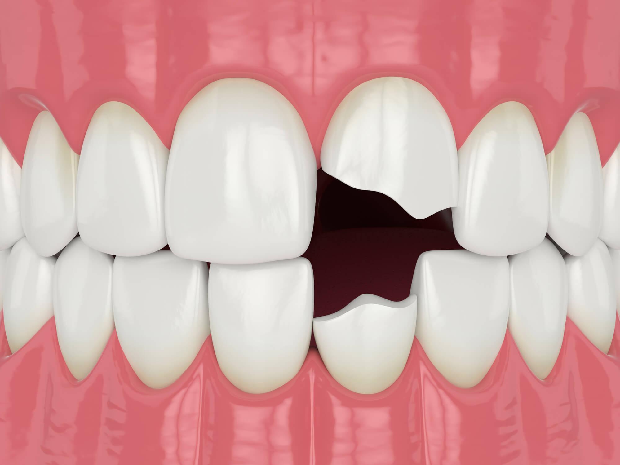 Diagram Dentist Green Lake Wa