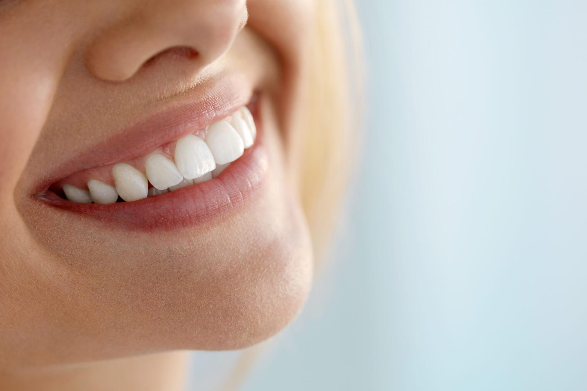 smile North Seattle Dentist